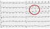 Patientin mit akutem Herzinfarkt