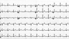 Normal-EKG einer herzgesunden jungen Frau