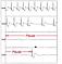 Automatisch aufgezeichnetes EKG bei einem Patienten mit Synkopen