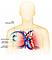 Schema eines rechtsseitig implantierten Herzschrittmachers