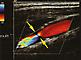 Karotis-Ultraschall: Höchstgradige Stenose der art. carotis interna