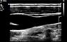 Karotis-Ultraschall: Normalbefund (B-Mode)