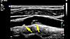 Karotis-Ultraschall: Plaque in der Karotisbifurkation