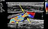 Karotis-Ultraschall: Mittelgradige Abgangsstenose der art. carotis interna