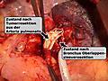 Bronchus-Oberlappen-Sleeve-Resektion links mit großem Defekt in der Pulmonalarterie